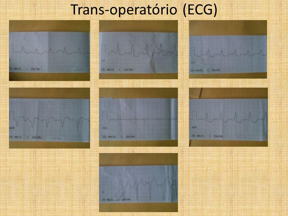 Trans-operatório (ECG)