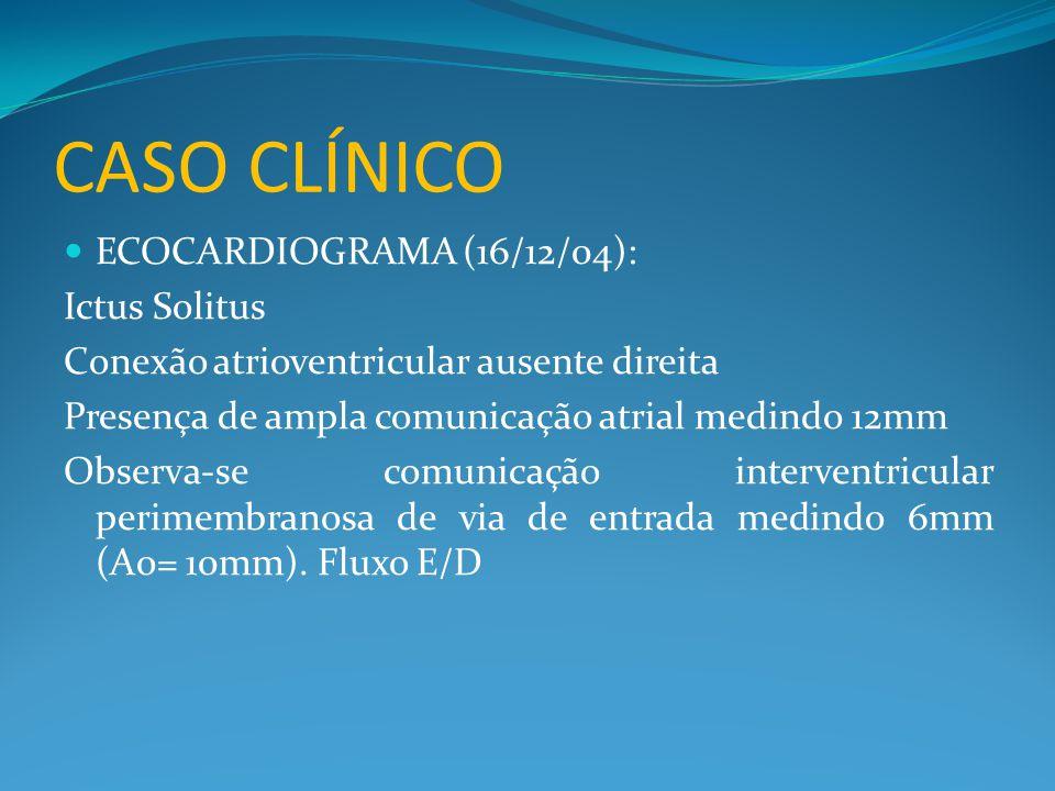 CASO CLÍNICO ECOCARDIOGRAMA (16/12/04): Ictus Solitus