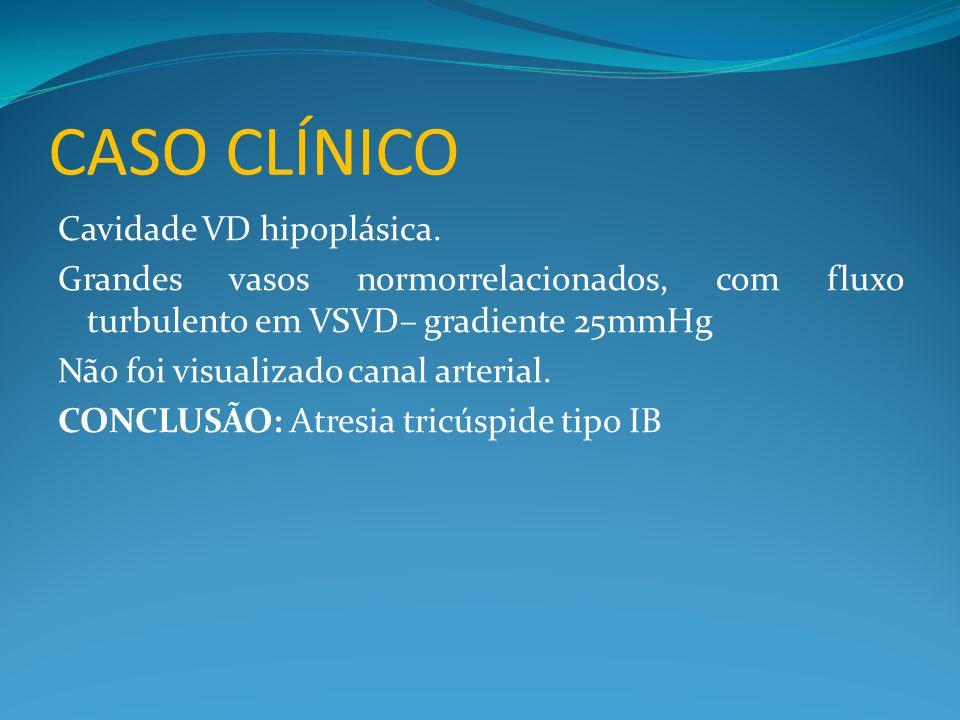 CASO CLÍNICO Cavidade VD hipoplásica.