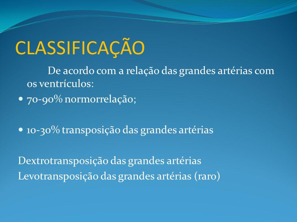 CLASSIFICAÇÃO De acordo com a relação das grandes artérias com os ventrículos: 70-90% normorrelação;