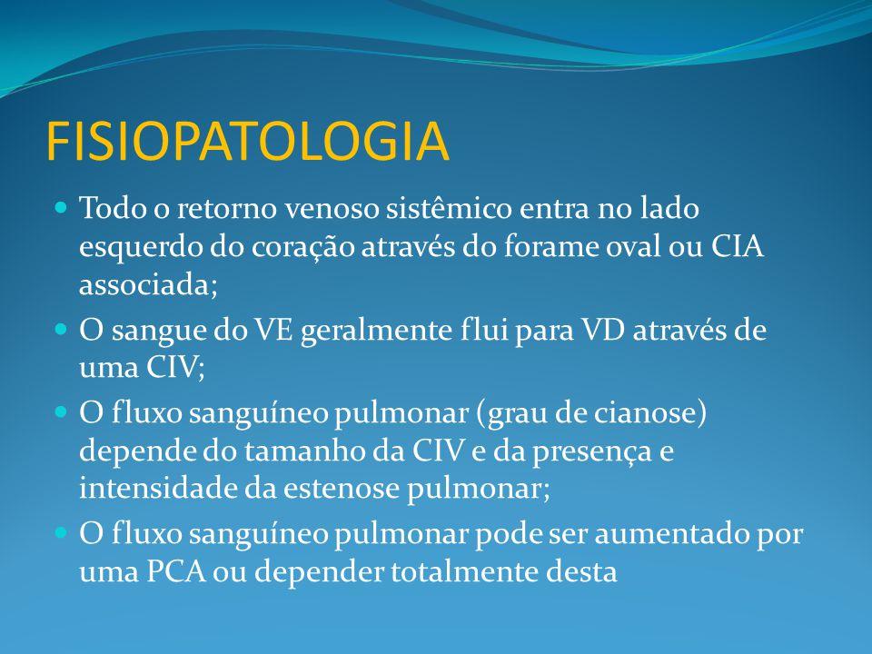 Fisiopatologia Todo o retorno venoso sistêmico entra no lado esquerdo do coração através do forame oval ou CIA associada;