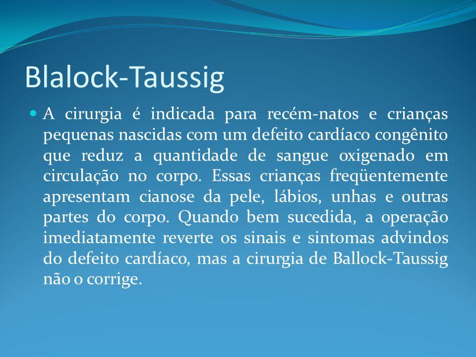 Blalock-Taussig