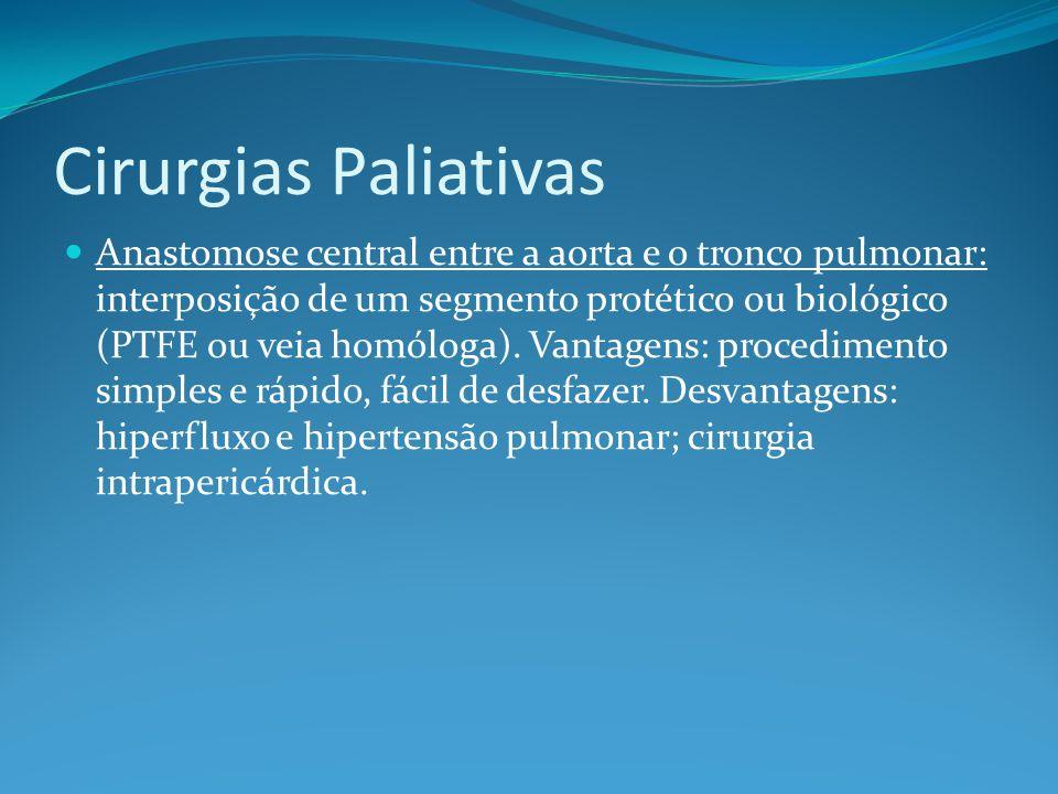 Cirurgias Paliativas