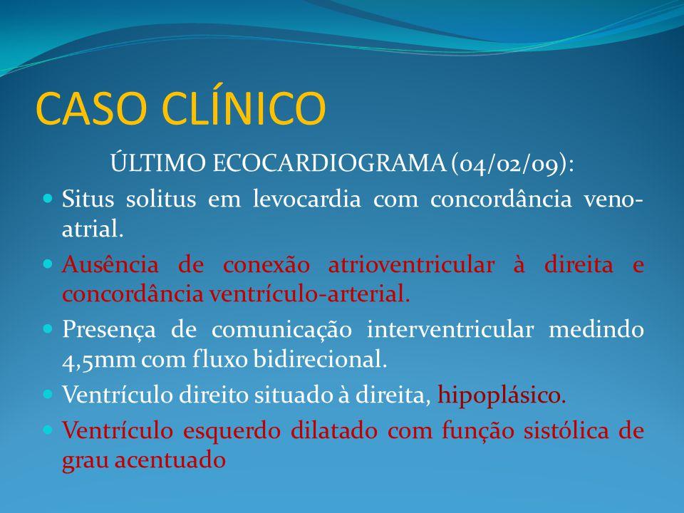 ÚLTIMO ECOCARDIOGRAMA (04/02/09):