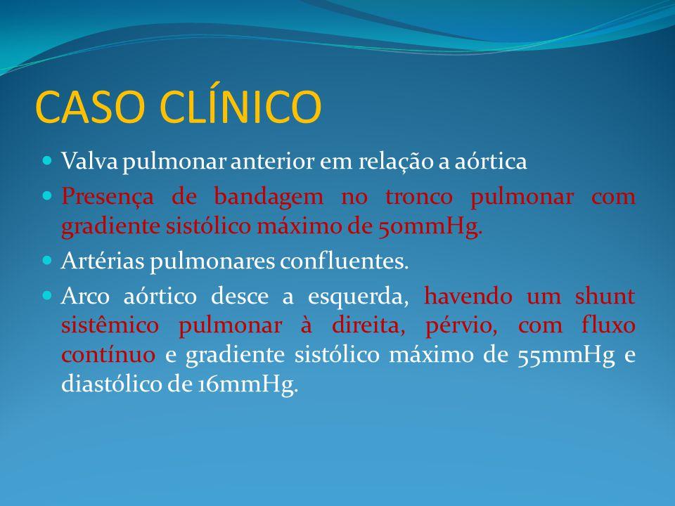 CASO CLÍNICO Valva pulmonar anterior em relação a aórtica