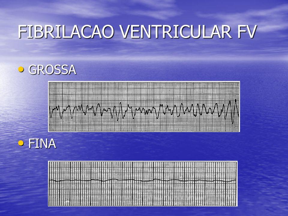 FIBRILACAO VENTRICULAR FV