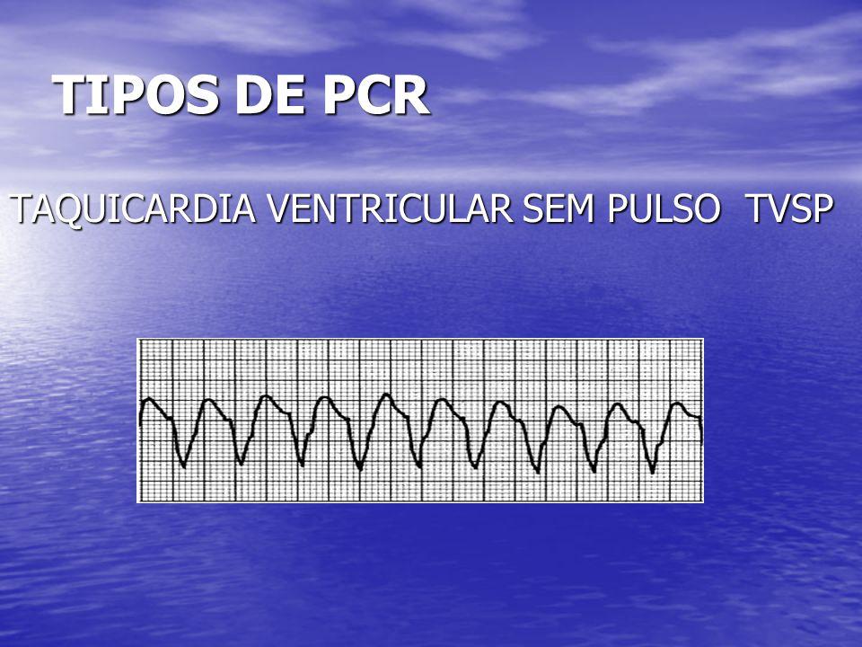 TIPOS DE PCR TAQUICARDIA VENTRICULAR SEM PULSO TVSP