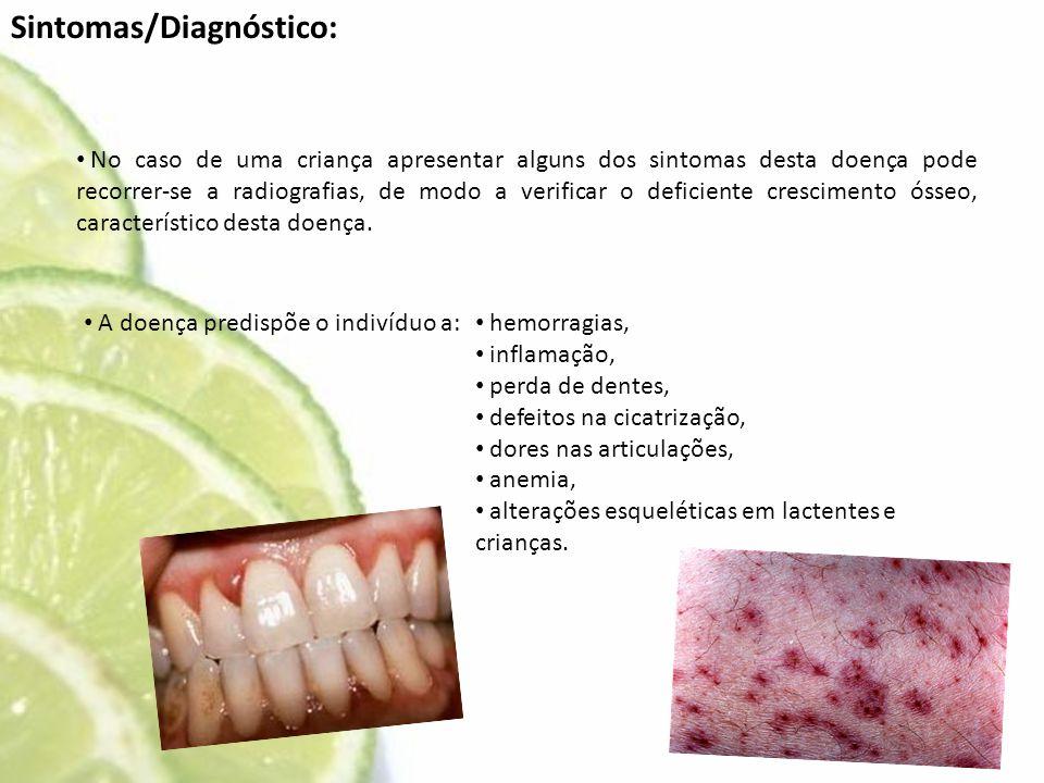 Sintomas/Diagnóstico: