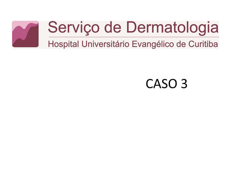 CASO 3