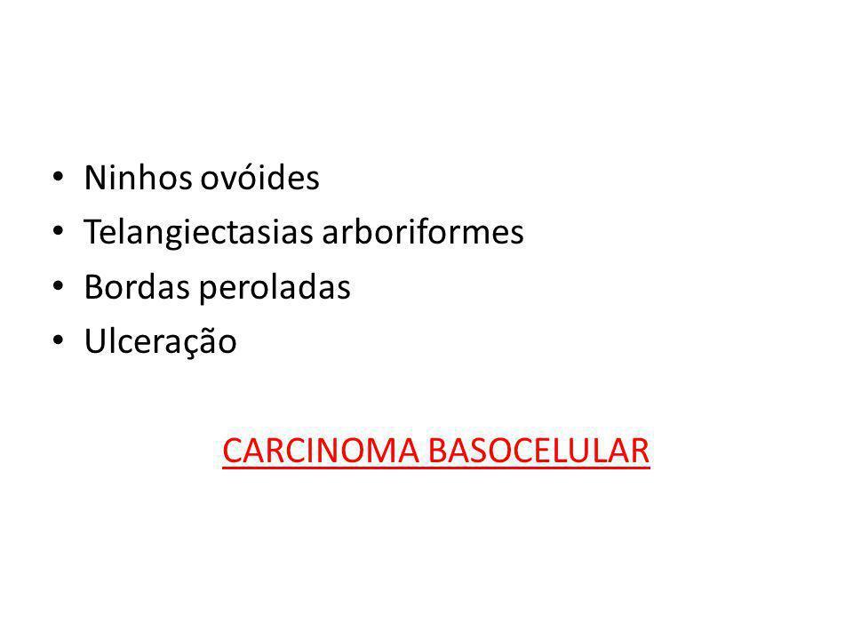 Ninhos ovóides Telangiectasias arboriformes Bordas peroladas Ulceração CARCINOMA BASOCELULAR