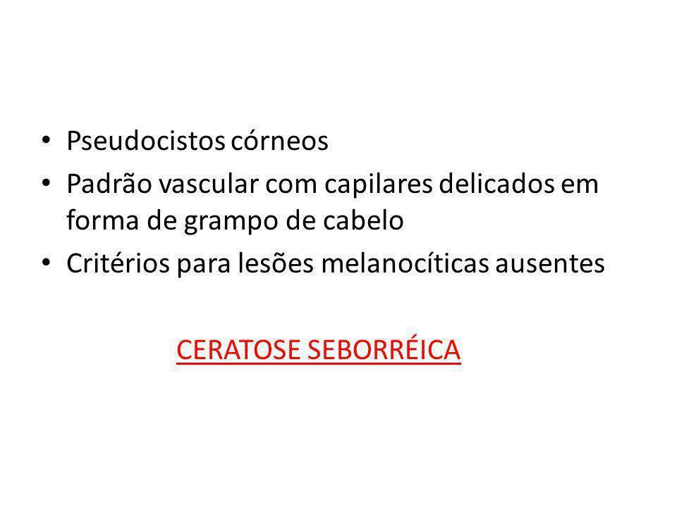 Pseudocistos córneos Padrão vascular com capilares delicados em forma de grampo de cabelo. Critérios para lesões melanocíticas ausentes.