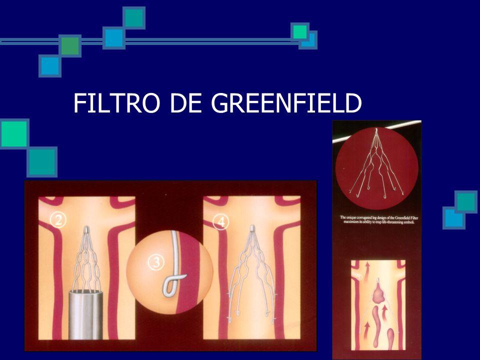 FILTRO DE GREENFIELD