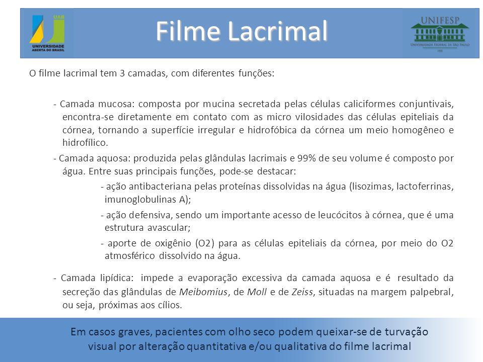 Filme Lacrimal O filme lacrimal tem 3 camadas, com diferentes funções: