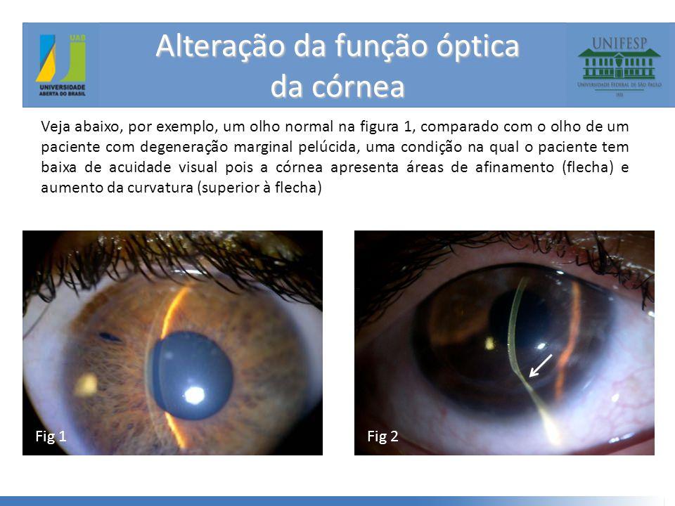 Alteração da função óptica da córnea