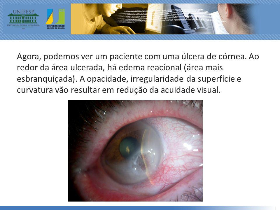 Agora, podemos ver um paciente com uma úlcera de córnea