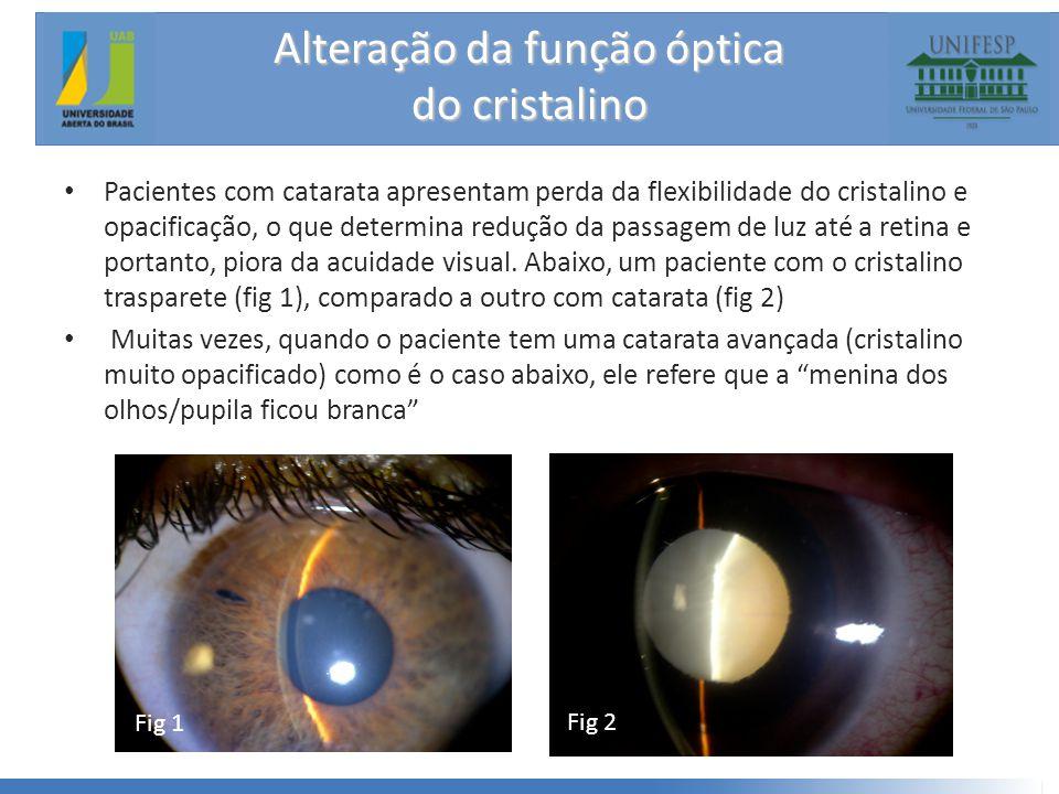 Alteração da função óptica do cristalino