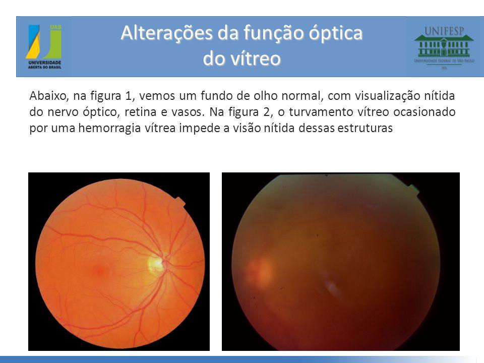 Alterações da função óptica do vítreo