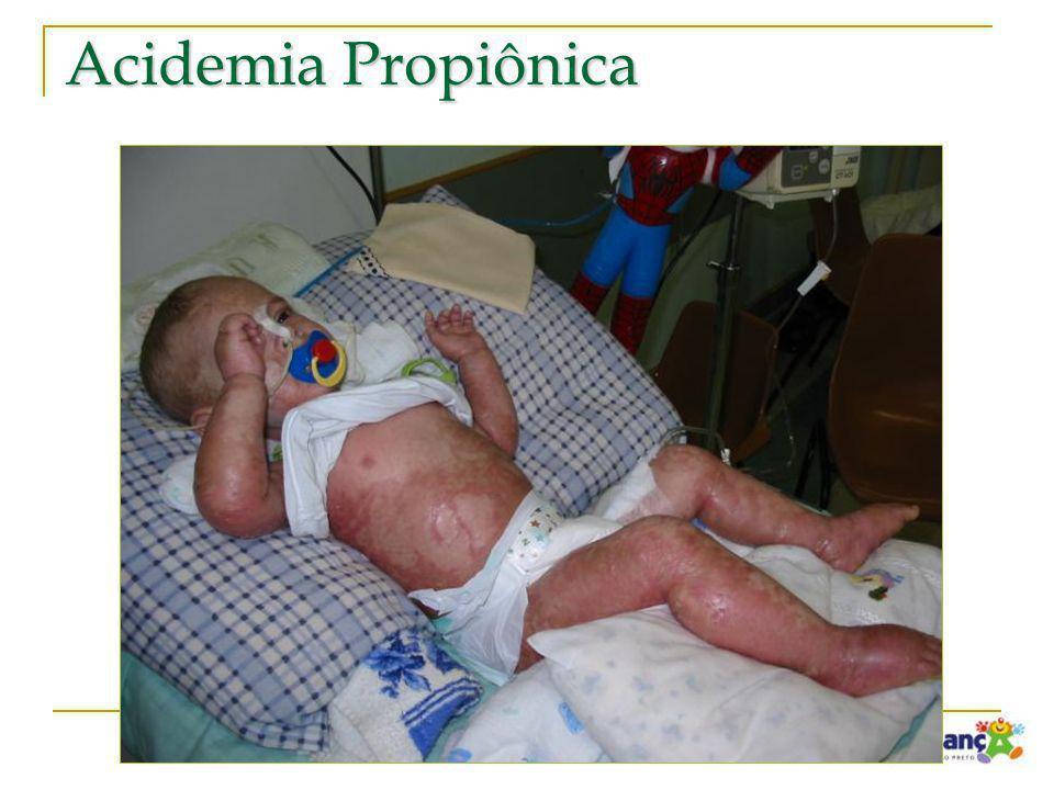 Acidemia Propiônica