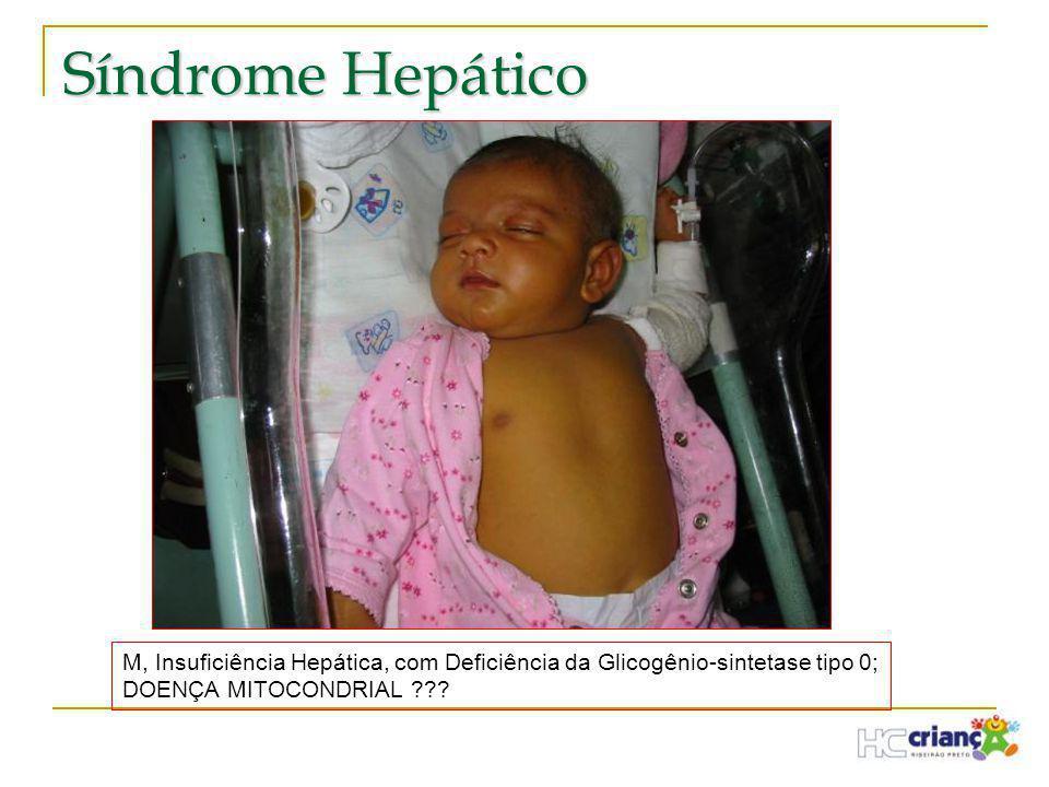 Síndrome Hepático M, Insuficiência Hepática, com Deficiência da Glicogênio-sintetase tipo 0; DOENÇA MITOCONDRIAL