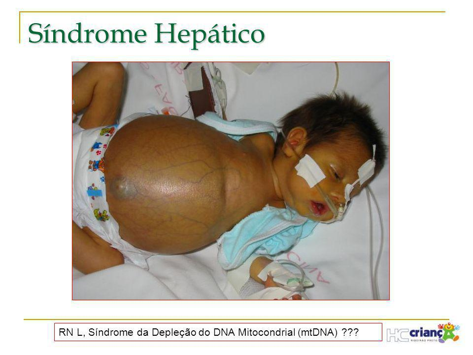 Síndrome Hepático RN L, Síndrome da Depleção do DNA Mitocondrial (mtDNA)