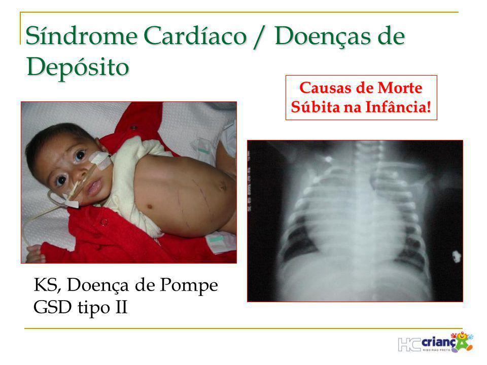 Síndrome Cardíaco / Doenças de Depósito