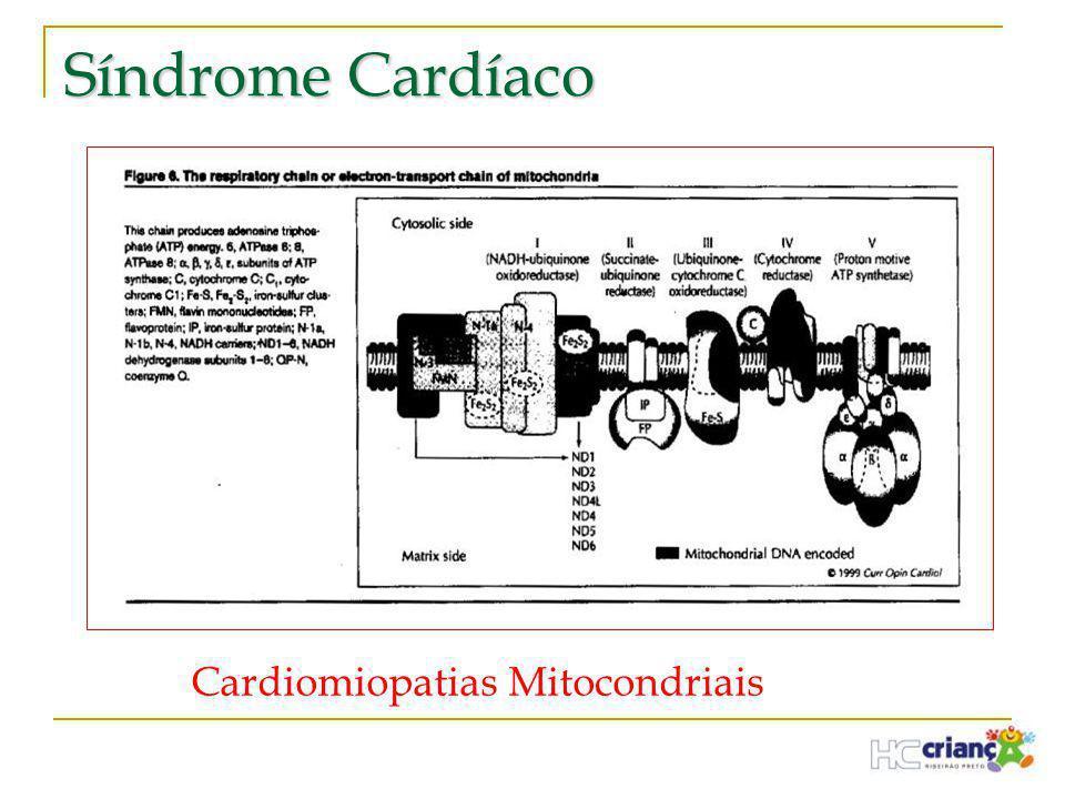 Síndrome Cardíaco Cardiomiopatias Mitocondriais