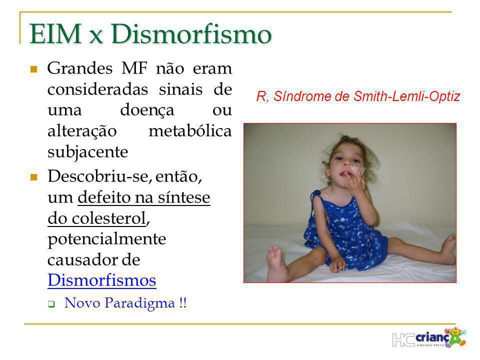 EIM x Dismorfismo Grandes MF não eram consideradas sinais de uma doença ou alteração metabólica subjacente.