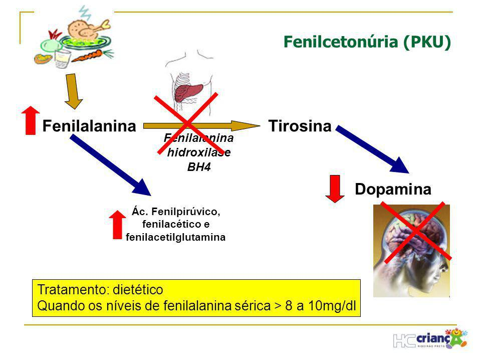 Ác. Fenilpirúvico, fenilacético e fenilacetilglutamina