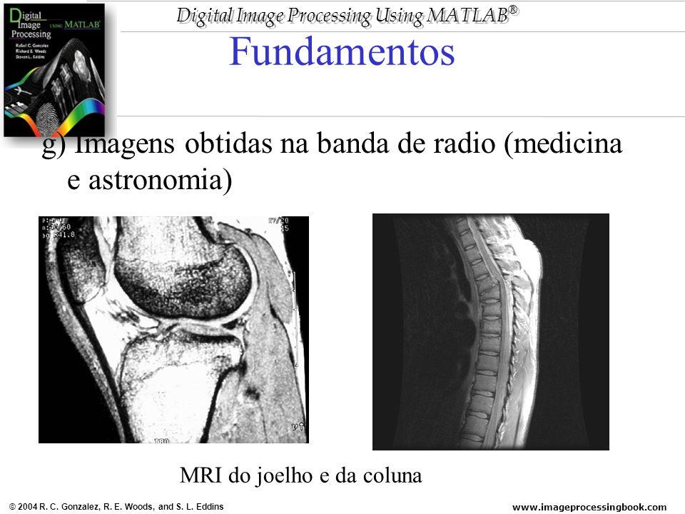 Fundamentos g) Imagens obtidas na banda de radio (medicina e astronomia) MRI do joelho e da coluna