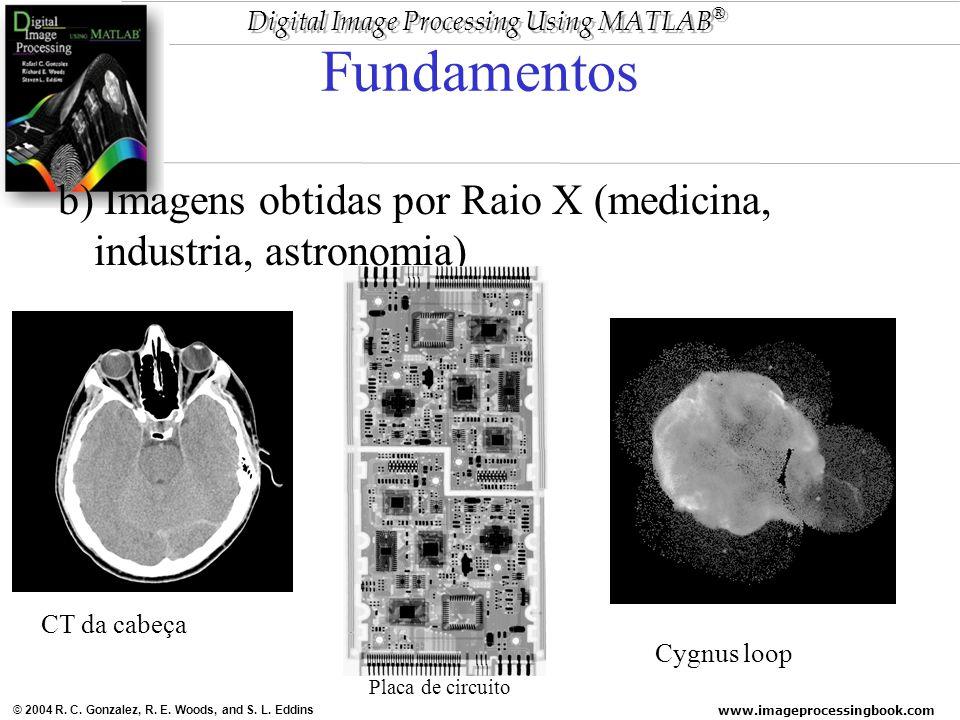 Fundamentos b) Imagens obtidas por Raio X (medicina, industria, astronomia) CT da cabeça. Cygnus loop.