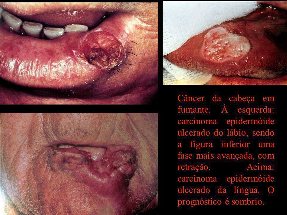 Câncer da cabeça em fumante
