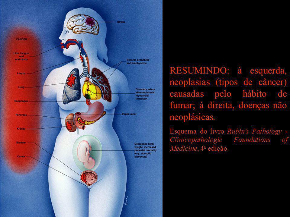 RESUMINDO: à esquerda, neoplasias (tipos de câncer) causadas pelo hábito de fumar; à direita, doenças não neoplásicas.