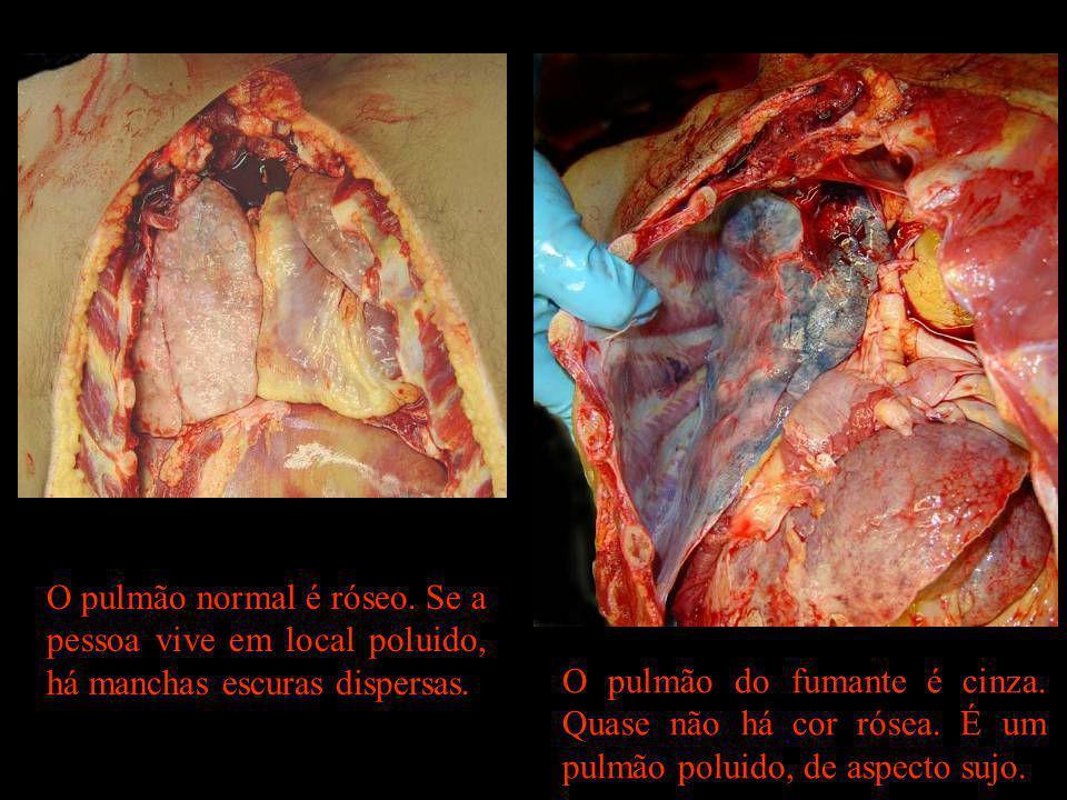 O pulmão normal é róseo. Se a pessoa vive em local poluido, há manchas escuras dispersas.