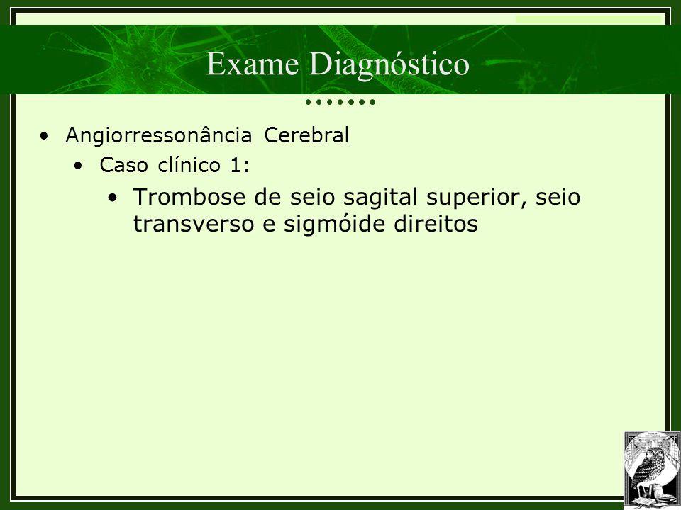 Exame Diagnóstico Angiorressonância Cerebral.