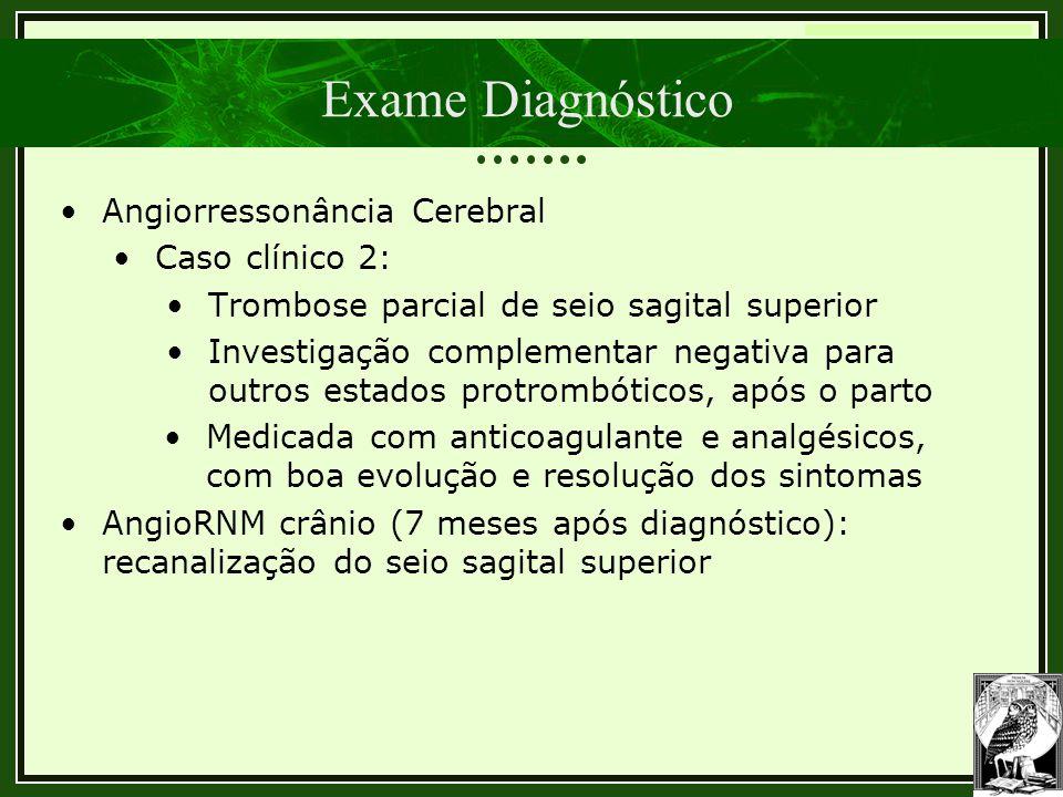 Exame Diagnóstico Angiorressonância Cerebral Caso clínico 2: