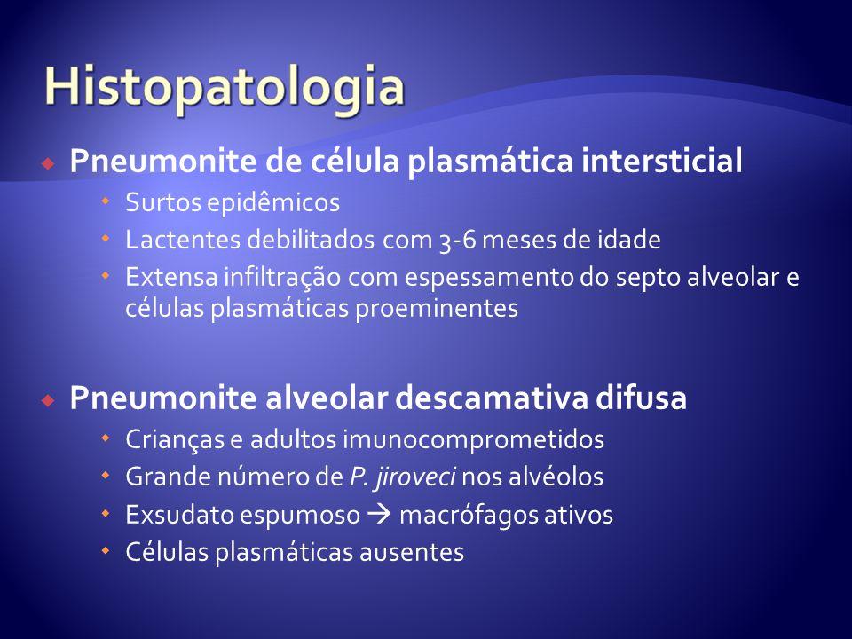 Pneumonite de célula plasmática intersticial