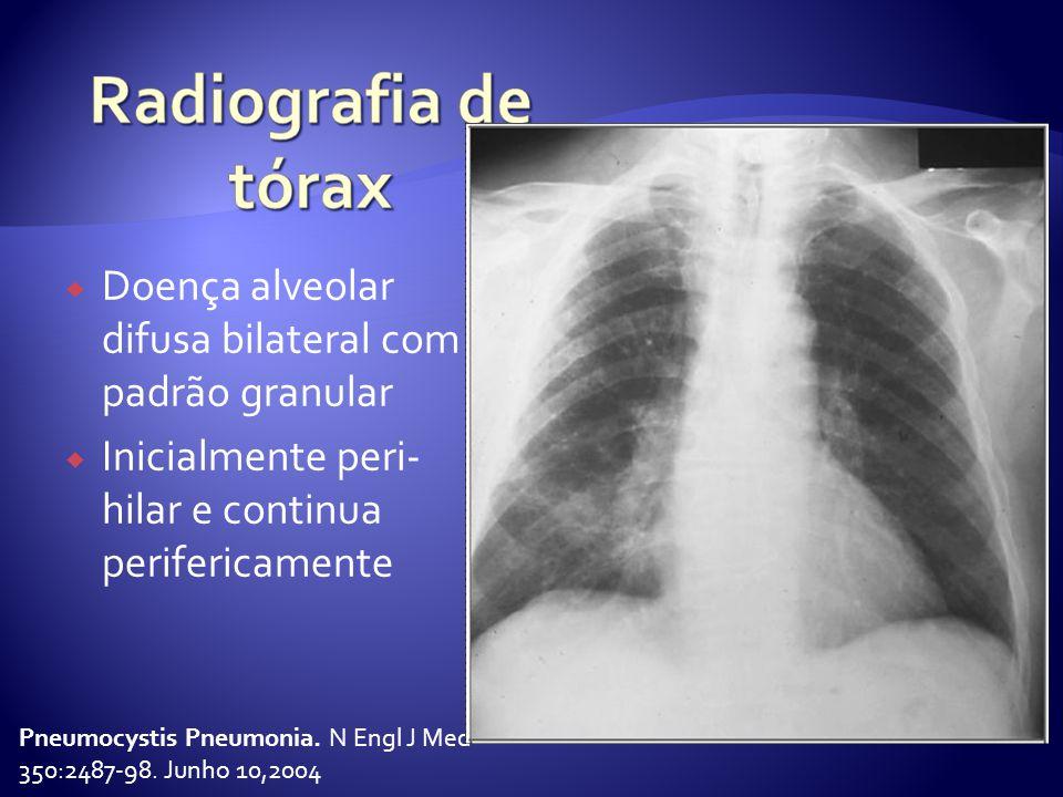 Doença alveolar difusa bilateral com padrão granular