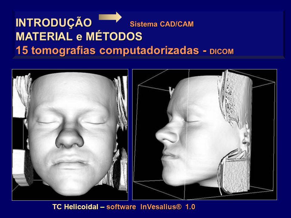 INTRODUÇÃO Sistema CAD/CAM MATERIAL e MÉTODOS
