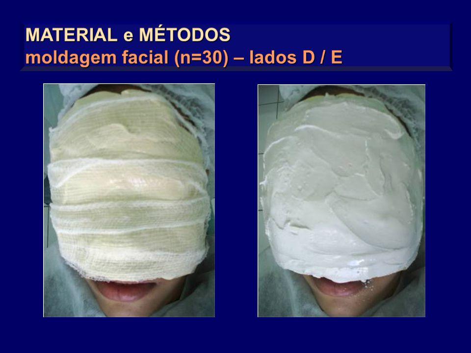 MATERIAL e MÉTODOS moldagem facial (n=30) – lados D / E