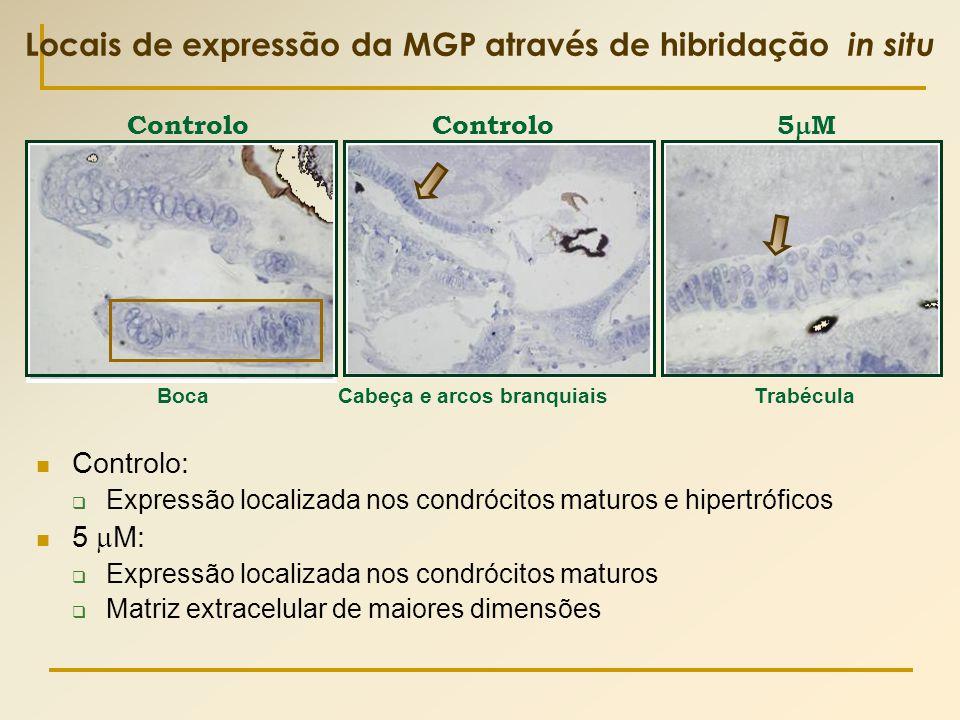 Locais de expressão da MGP através de hibridação in situ