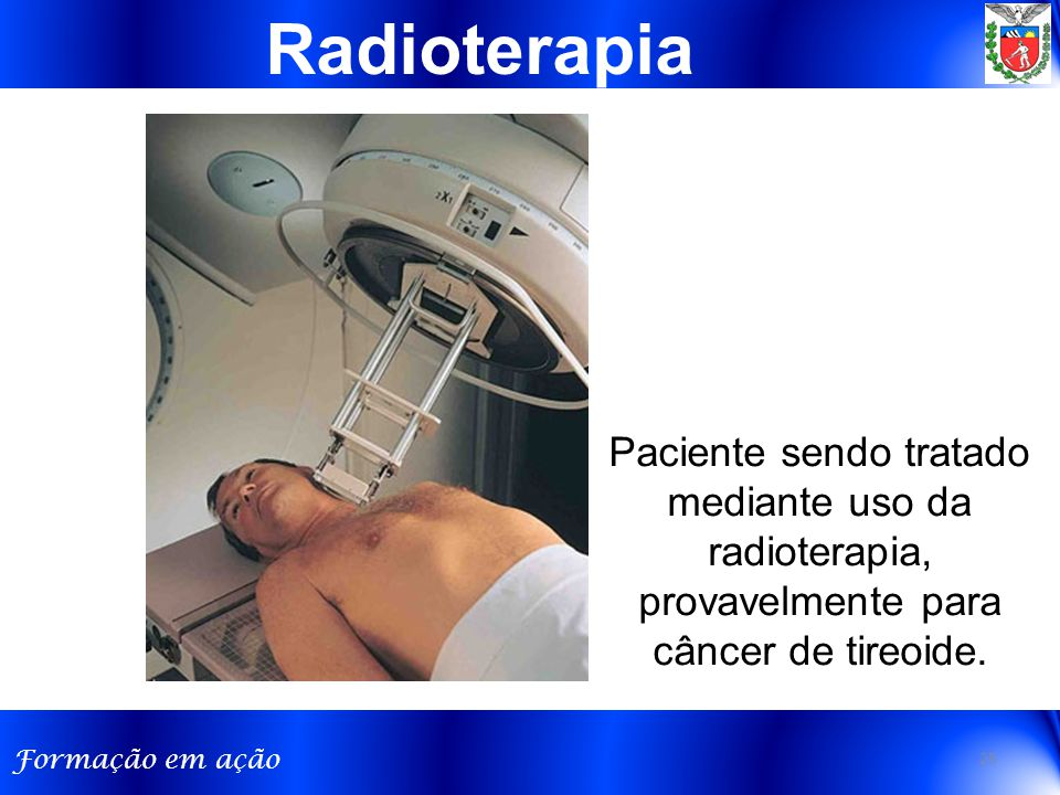 Radioterapia Paciente sendo tratado mediante uso da radioterapia, provavelmente para câncer de tireoide.