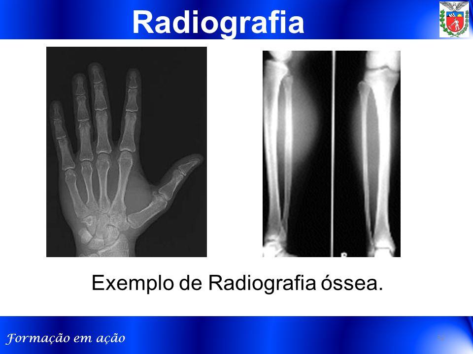 Radiografia Exemplo de Radiografia óssea.