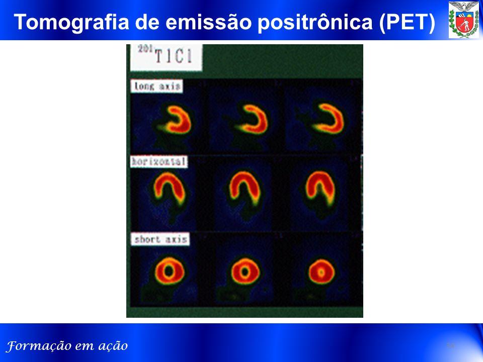 Tomografia de emissão positrônica (PET)