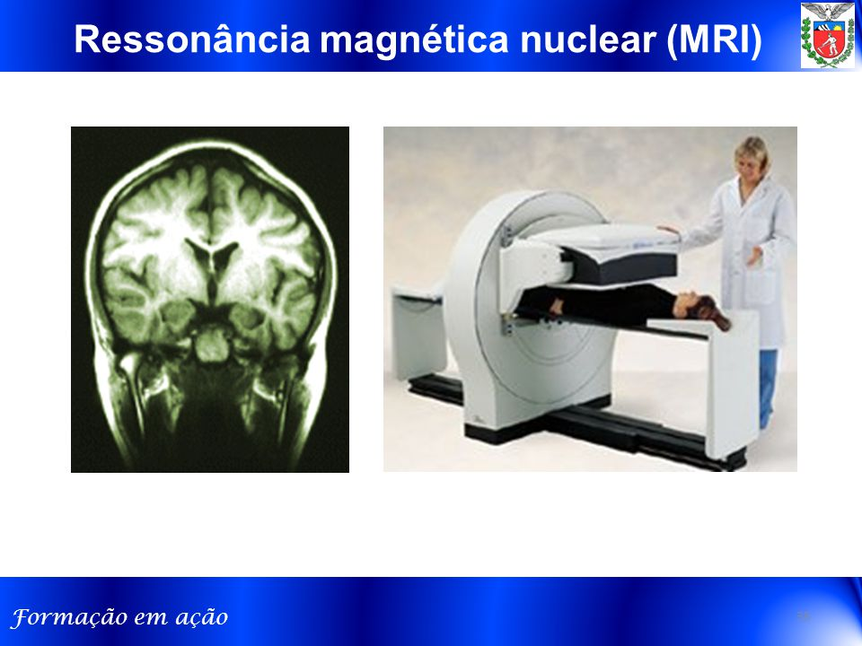 Ressonância magnética nuclear (MRI)