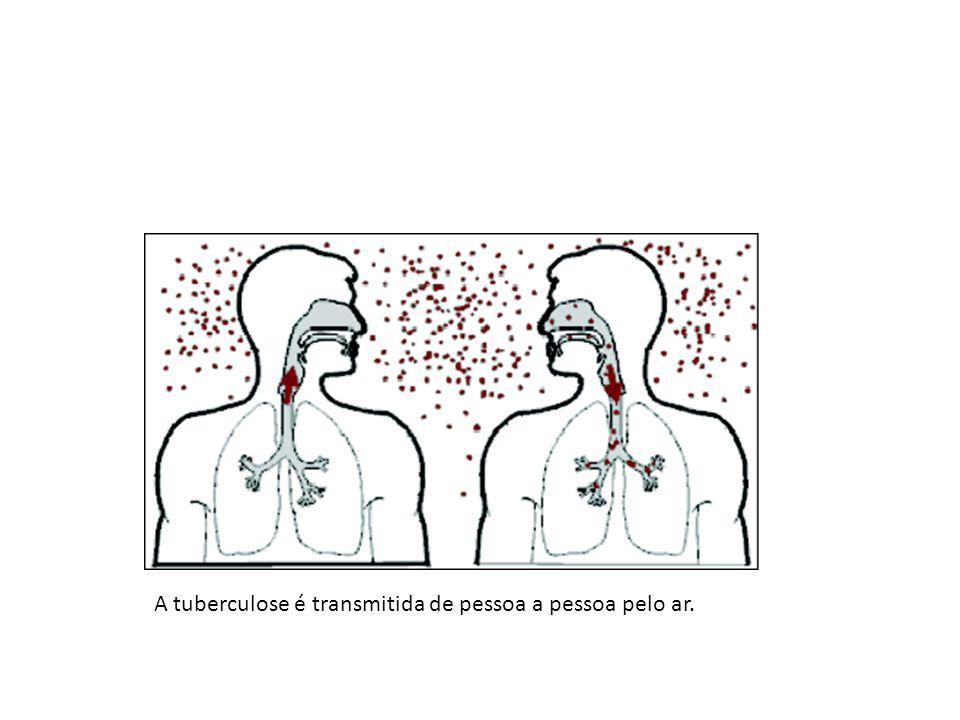 A tuberculose é transmitida de pessoa a pessoa pelo ar.