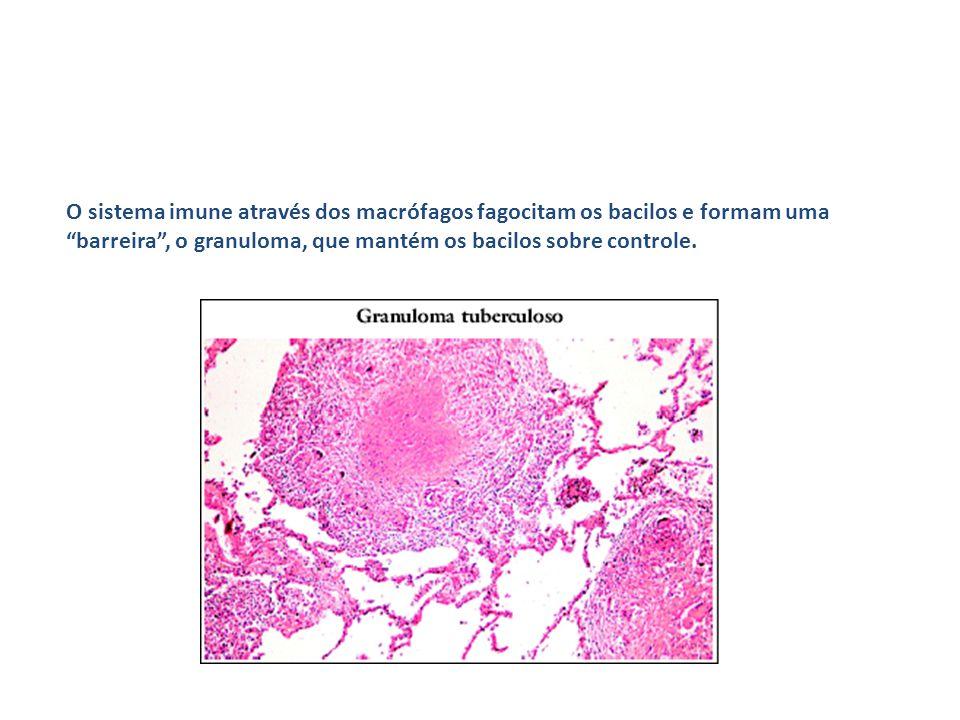 O sistema imune através dos macrófagos fagocitam os bacilos e formam uma barreira , o granuloma, que mantém os bacilos sobre controle.