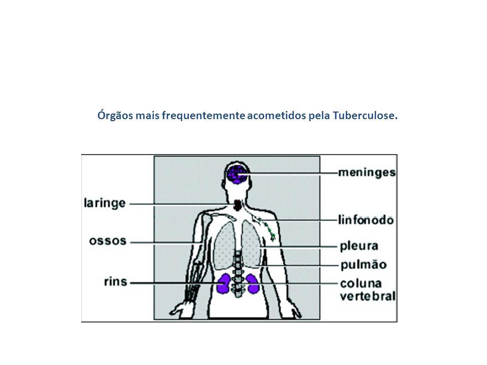Órgãos mais frequentemente acometidos pela Tuberculose.