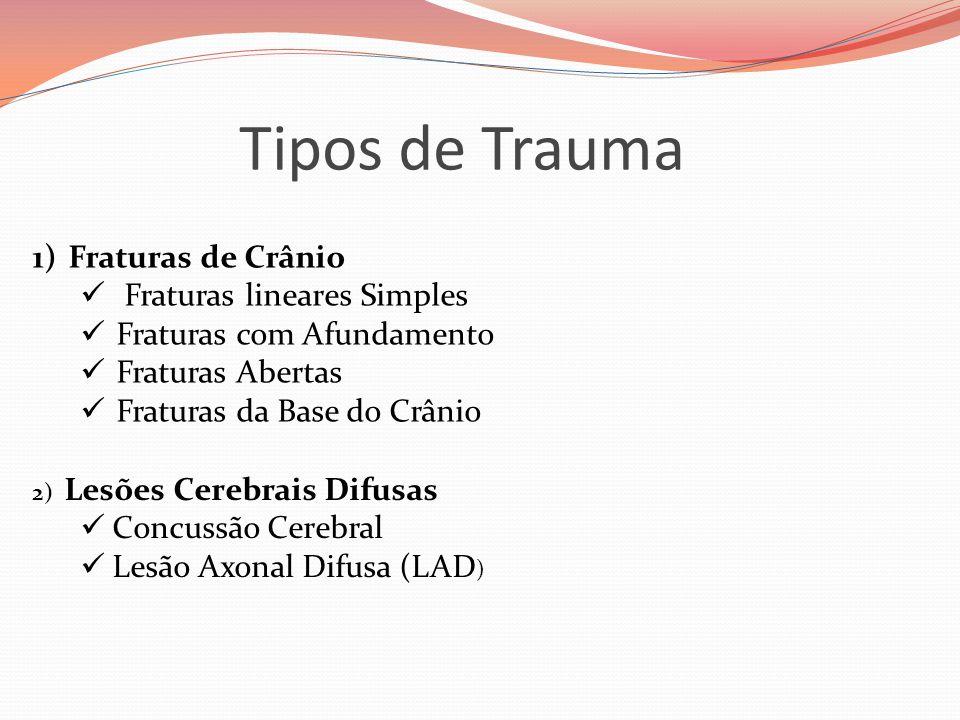 Tipos de Trauma Fraturas de Crânio Fraturas lineares Simples