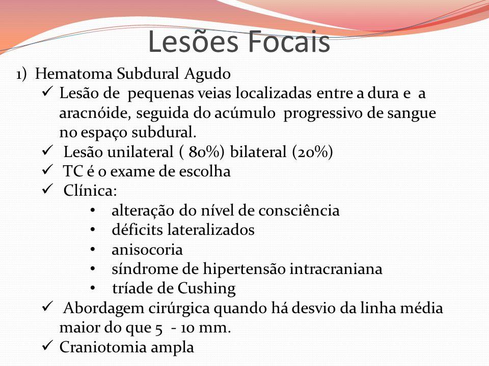 Lesões Focais Hematoma Subdural Agudo