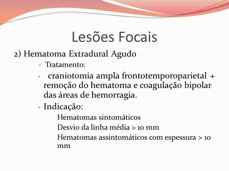 Lesões Focais 2) Hematoma Extradural Agudo